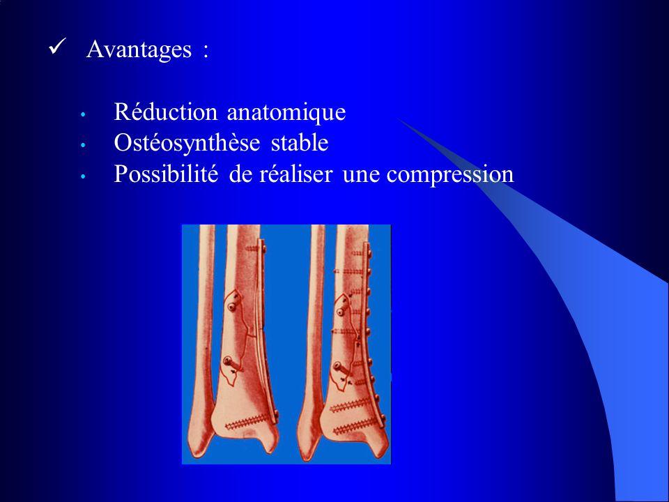 Avantages : Réduction anatomique Ostéosynthèse stable Possibilité de réaliser une compression