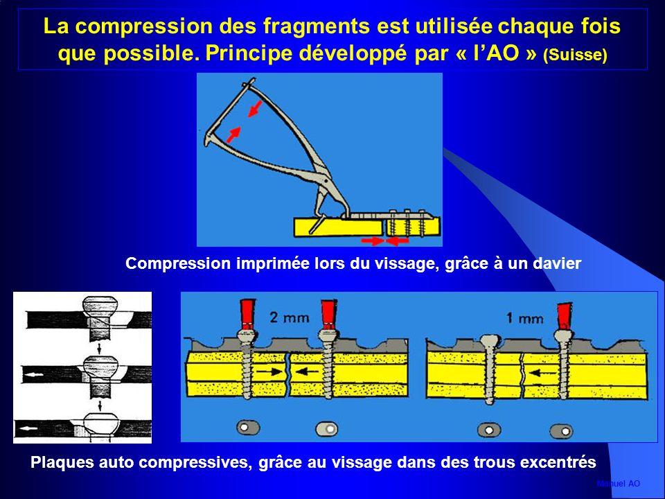 Plaques auto compressives, grâce au vissage dans des trous excentrés Compression imprimée lors du vissage, grâce à un davier La compression des fragme