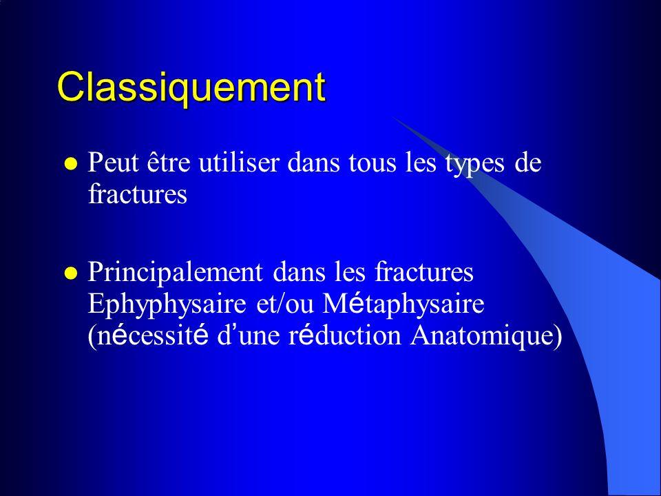 Classiquement Peut être utiliser dans tous les types de fractures Principalement dans les fractures Ephyphysaire et/ou M é taphysaire (n é cessit é d