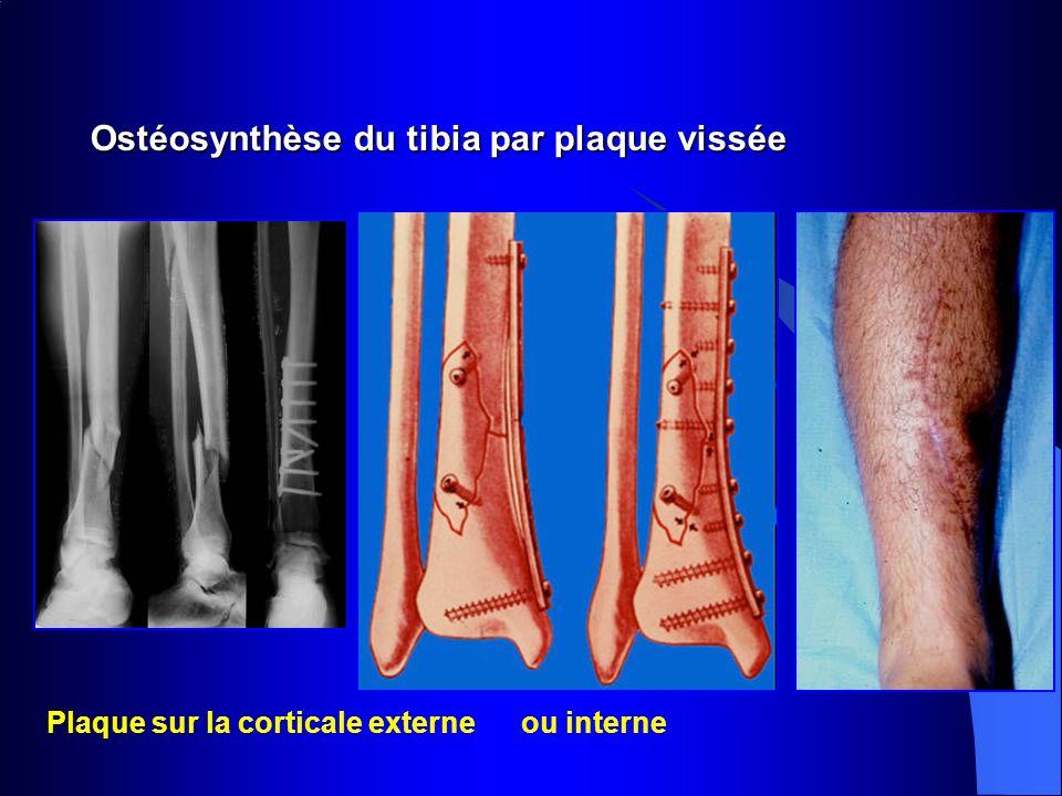 Ostéosynthèse du tibia par plaque vissée Plaque sur la corticale externe ou interne