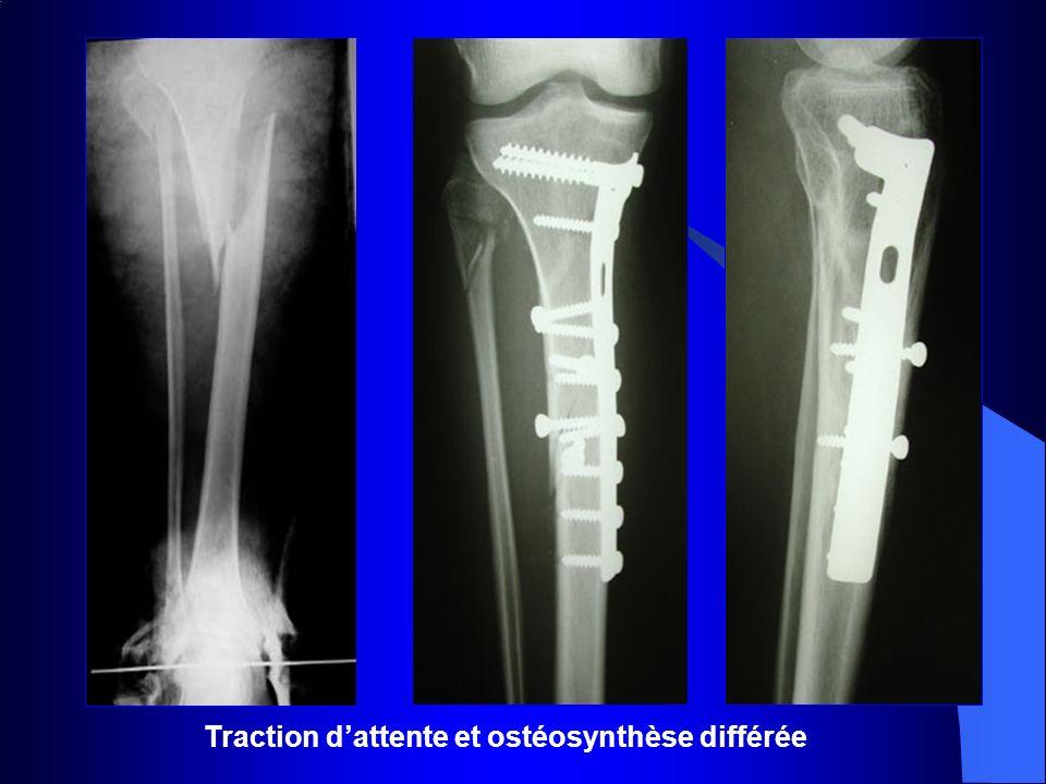 Traction dattente et ostéosynthèse différée