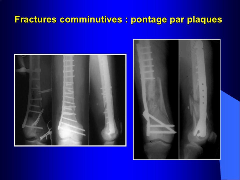 Fractures comminutives : pontage par plaques