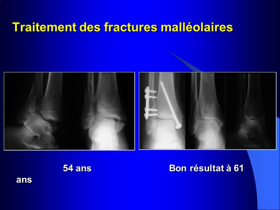 Traitement des fractures malléolaires 54 ans Bon résultat à 61 ans