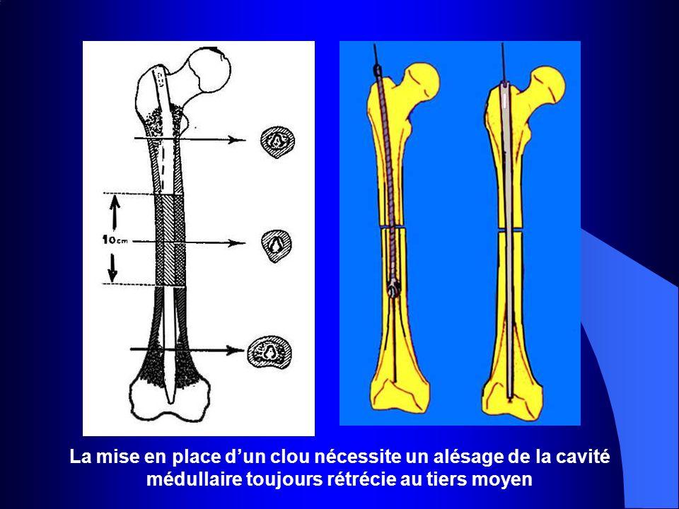 La mise en place dun clou nécessite un alésage de la cavité médullaire toujours rétrécie au tiers moyen