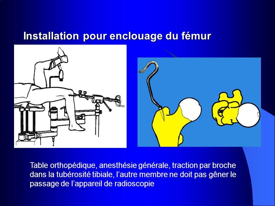 Installation pour enclouage du fémur Table orthopédique, anesthésie générale, traction par broche dans la tubérosité tibiale, lautre membre ne doit pa