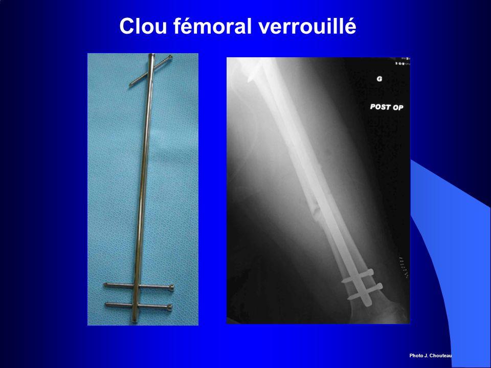 Clou fémoral verrouillé Photo J. Chouteau