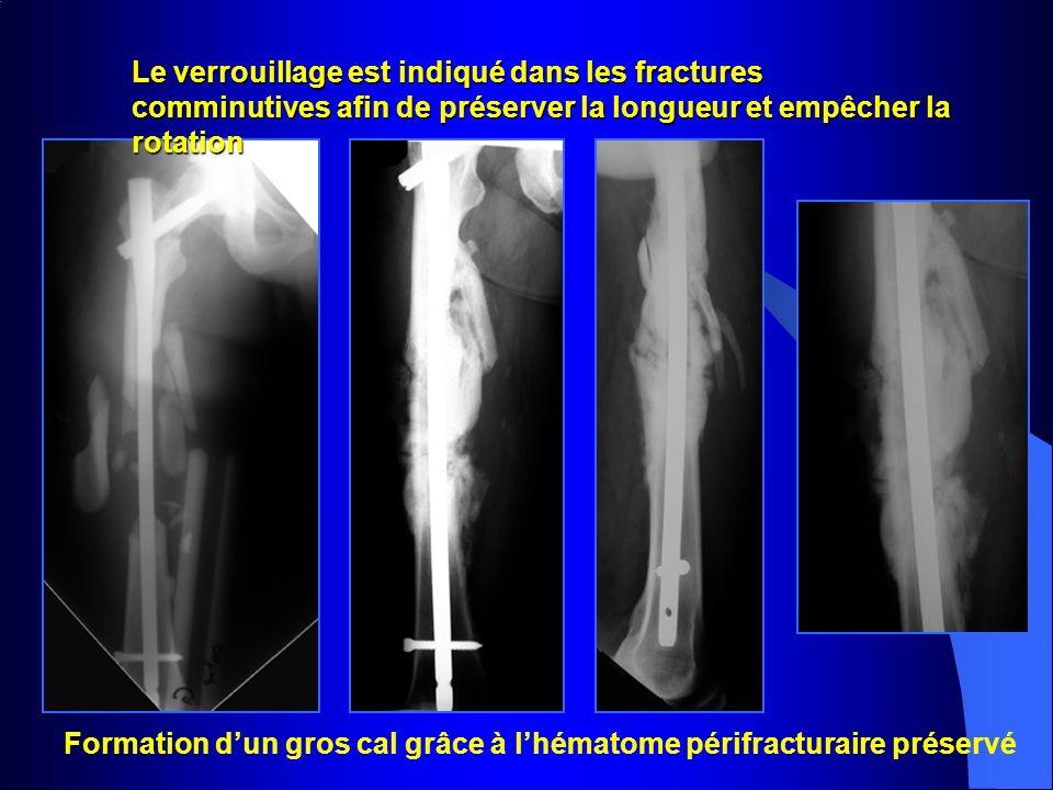 Formation dun gros cal grâce à lhématome périfracturaire préservé