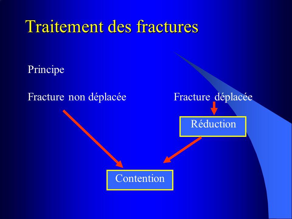 Principe Fracture non déplacéeFracture déplacée Réduction Contention Traitement des fractures