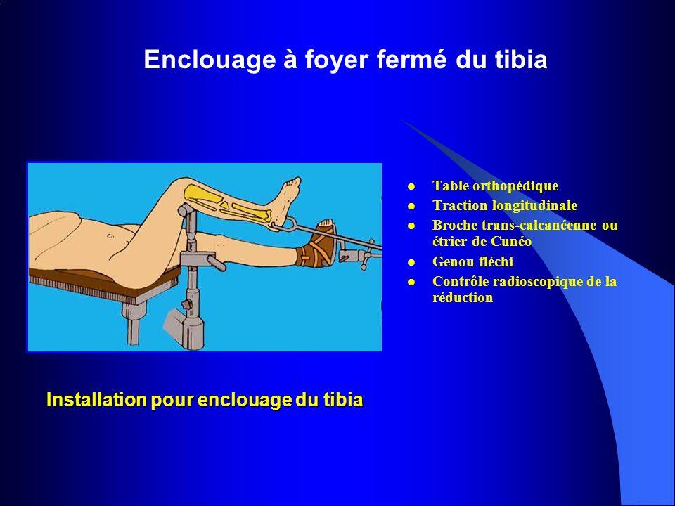Installation pour enclouage du tibia Table orthopédique Traction longitudinale Broche trans-calcanéenne ou étrier de Cunéo Genou fléchi Contrôle radio