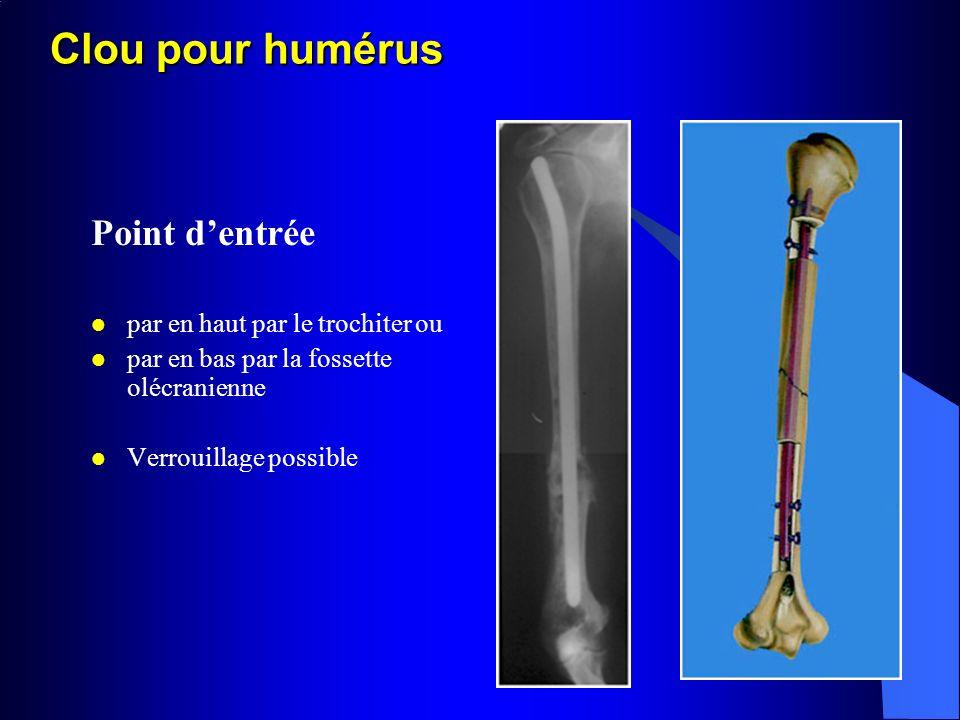 Clou pour humérus Point dentrée par en haut par le trochiter ou par en bas par la fossette olécranienne Verrouillage possible