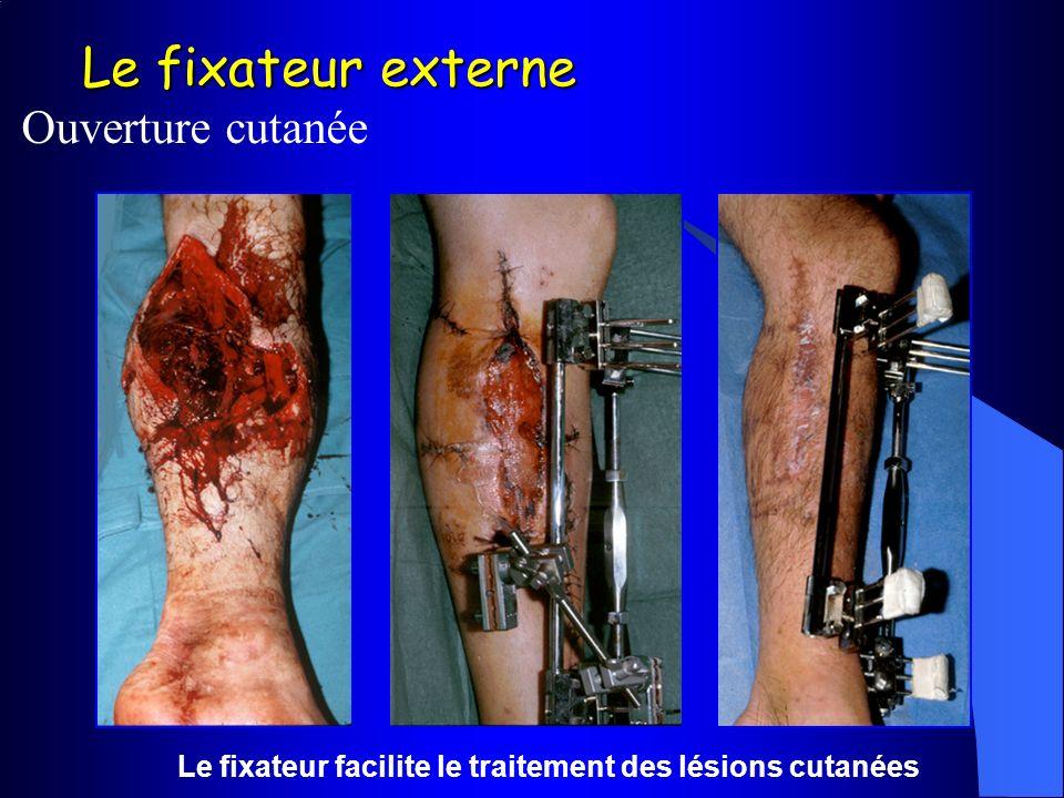 Le fixateur externe Ouverture cutanée Le fixateur facilite le traitement des lésions cutanées