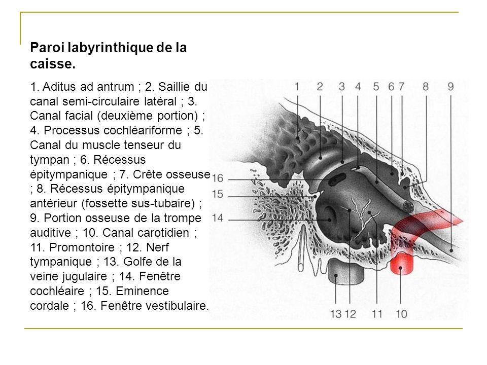 Paroi labyrinthique de la caisse. 1. Aditus ad antrum ; 2. Saillie du canal semi-circulaire latéral ; 3. Canal facial (deuxième portion) ; 4. Processu