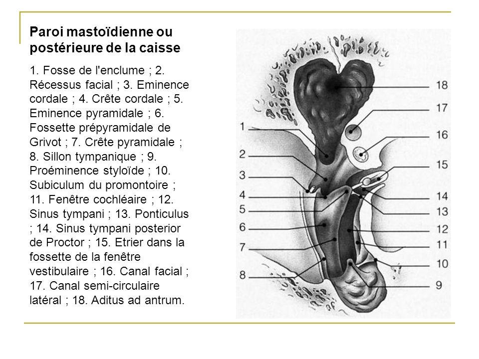 Paroi mastoïdienne ou postérieure de la caisse 1. Fosse de l'enclume ; 2. Récessus facial ; 3. Eminence cordale ; 4. Crête cordale ; 5. Eminence pyram