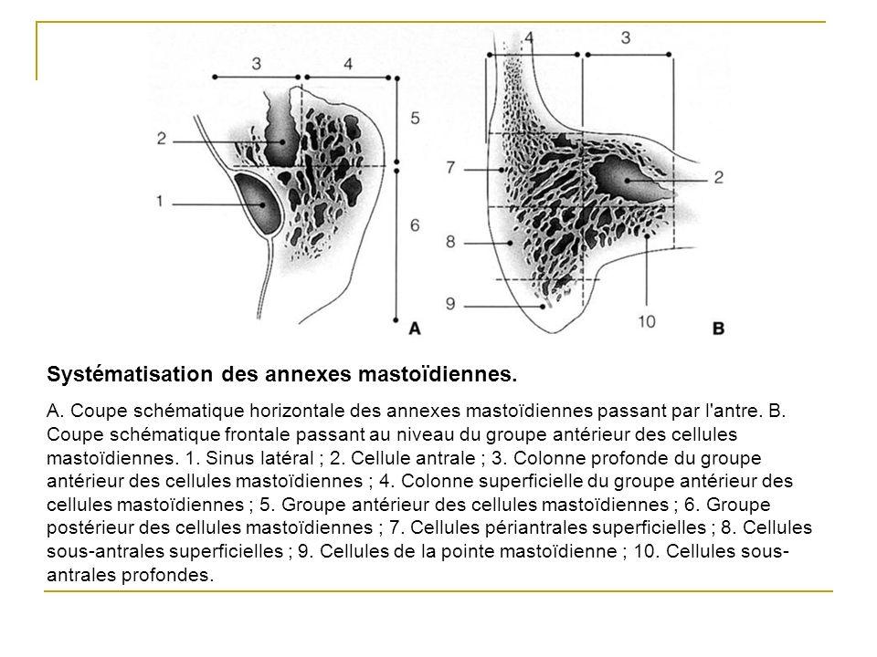 Systématisation des annexes mastoïdiennes. A. Coupe schématique horizontale des annexes mastoïdiennes passant par l'antre. B. Coupe schématique fronta