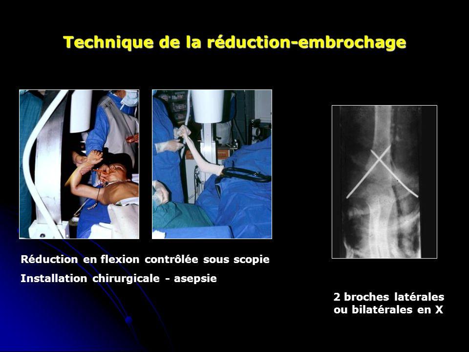 Technique de la réduction-embrochage Réduction en flexion contrôlée sous scopie Installation chirurgicale - asepsie 2 broches latérales ou bilatérales en X