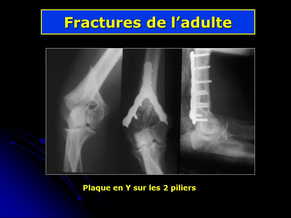 Fractures de ladulte Plaque en Y sur les 2 piliers