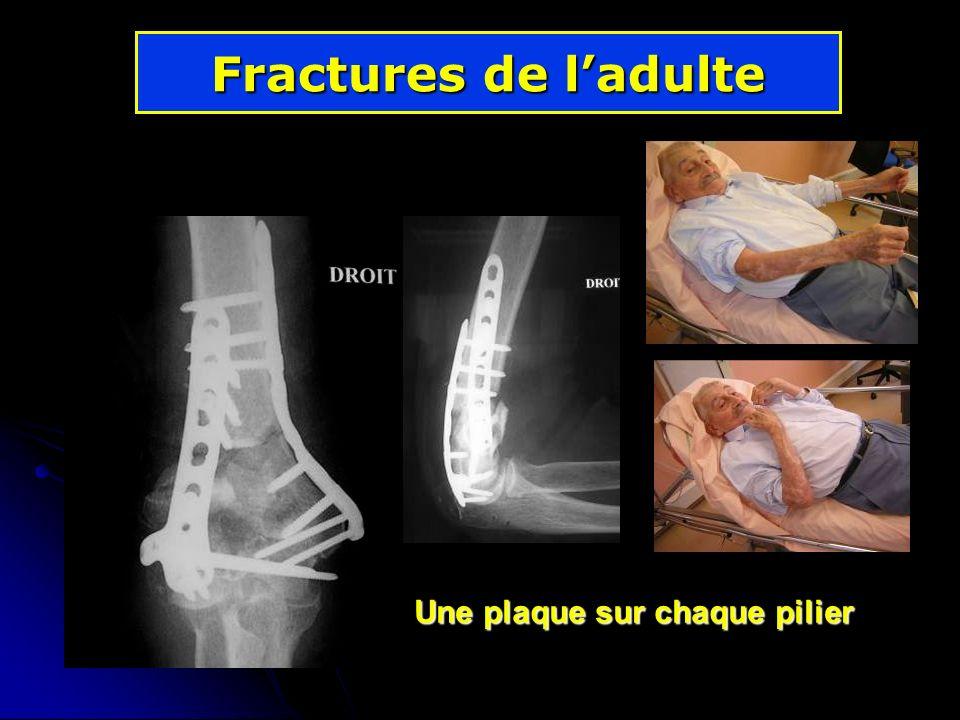 Fractures de ladulte Une plaque sur chaque pilier