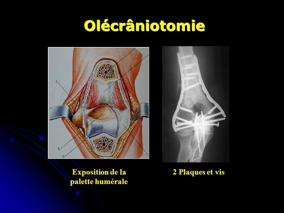 Olécrâniotomie Exposition de la2 Plaques et vis palette humérale