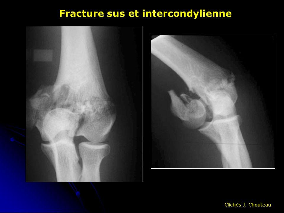 Fracture sus et intercondylienne Clichés J. Chouteau