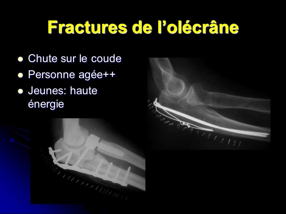 Fractures de lolécrâne Chute sur le coude Chute sur le coude Personne agée++ Personne agée++ Jeunes: haute énergie Jeunes: haute énergie