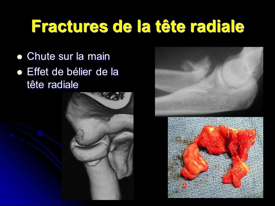 Fractures de la tête radiale Chute sur la main Chute sur la main Effet de bélier de la tête radiale Effet de bélier de la tête radiale