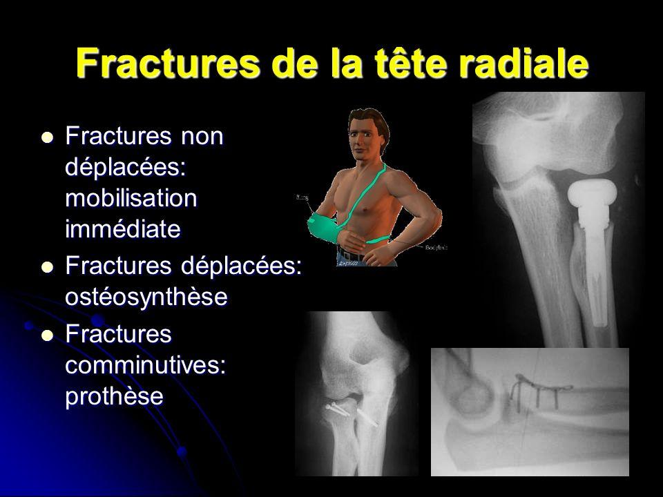 Fractures de la tête radiale Fractures non déplacées: mobilisation immédiate Fractures non déplacées: mobilisation immédiate Fractures déplacées: ostéosynthèse Fractures déplacées: ostéosynthèse Fractures comminutives: prothèse Fractures comminutives: prothèse