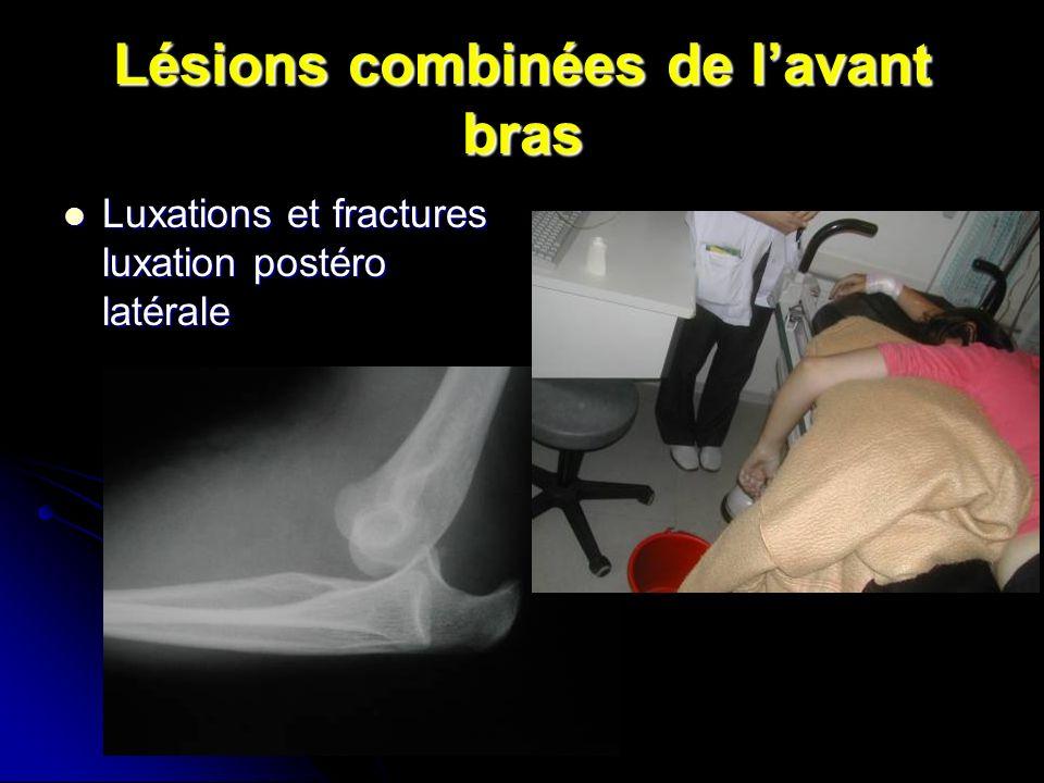 Lésions combinées de lavant bras Luxations et fractures luxation postéro latérale Luxations et fractures luxation postéro latérale
