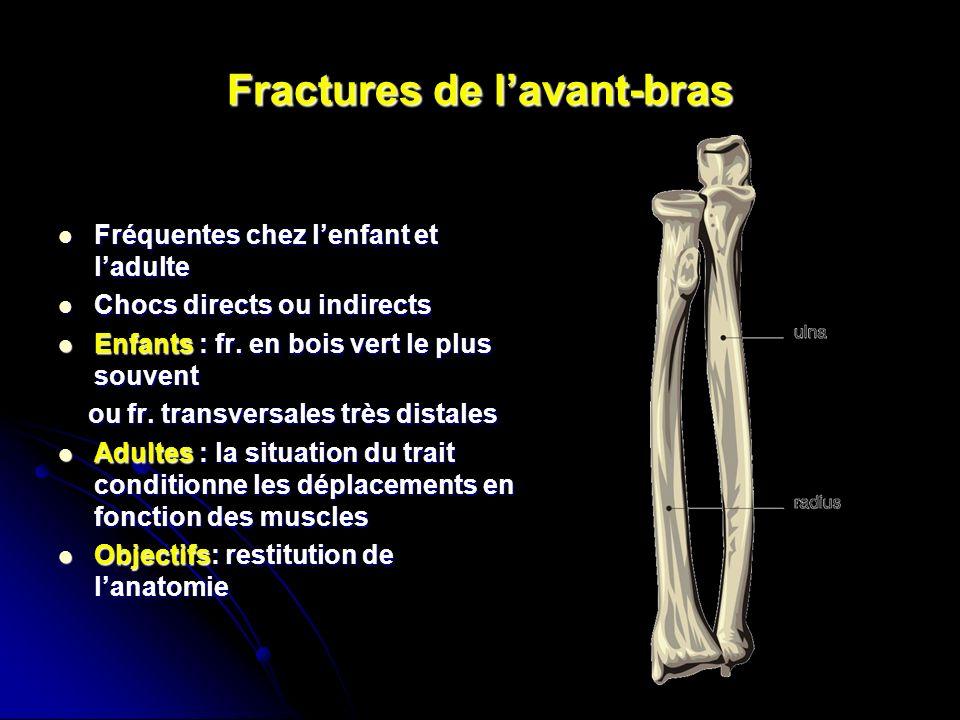 Fractures de lavant-bras Fréquentes chez lenfant et ladulte Fréquentes chez lenfant et ladulte Chocs directs ou indirects Chocs directs ou indirects Enfants : fr.