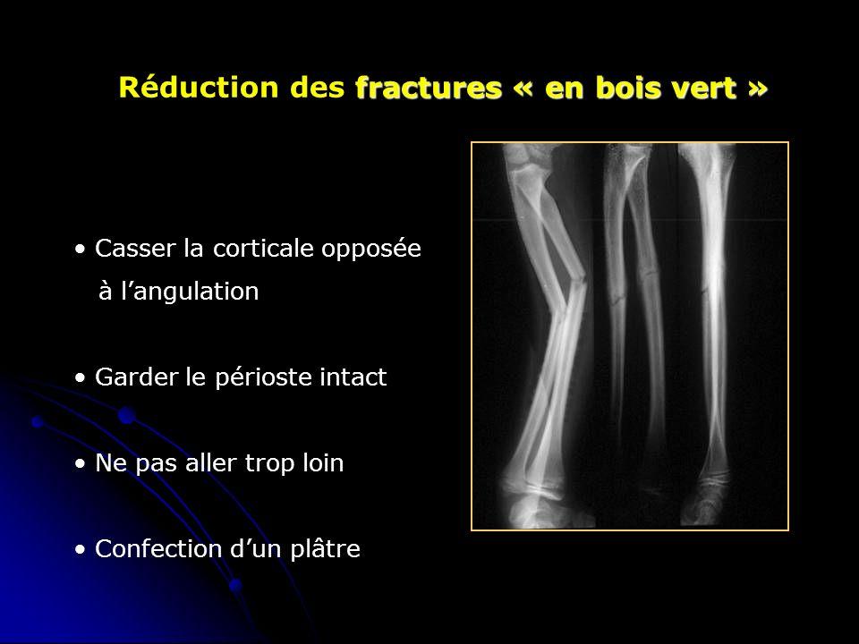 fractures « en bois vert » Réduction des fractures « en bois vert » Casser la corticale opposée à langulation Garder le périoste intact Ne pas aller trop loin Confection dun plâtre