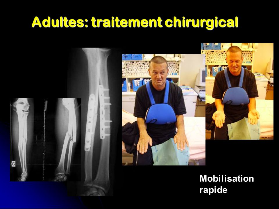 Adultes: traitement chirurgical Mobilisation rapide