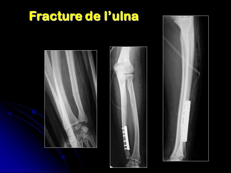 Fracture de lulna