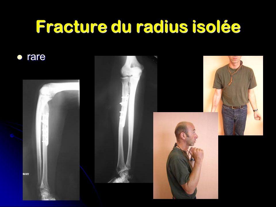 Fracture du radius isolée rare rare
