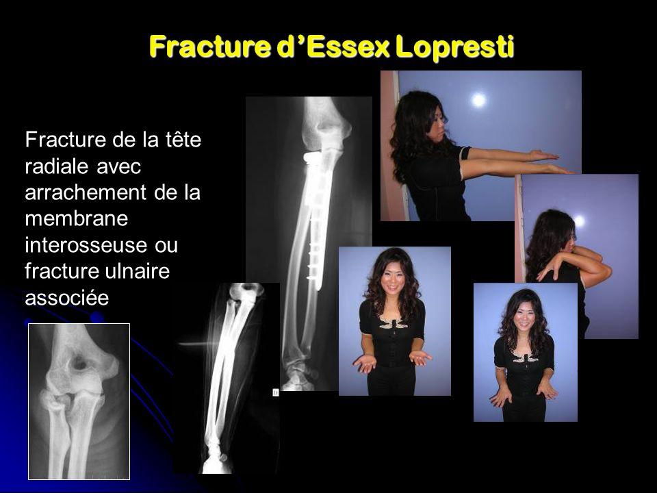 Fracture dEssex Lopresti Fracture de la tête radiale avec arrachement de la membrane interosseuse ou fracture ulnaire associée