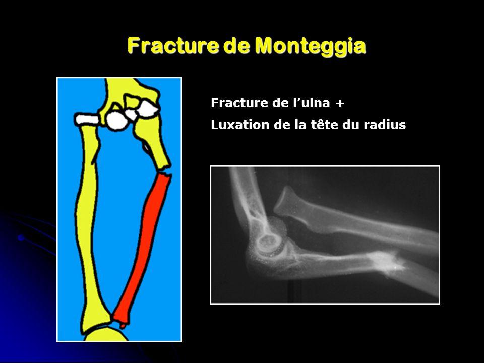 Fracture de Monteggia Fracture de lulna + Luxation de la tête du radius