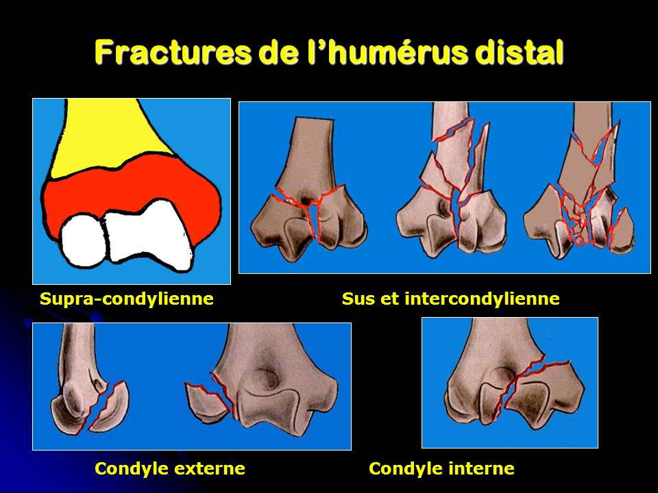 Fractures de lhumérus distal Supra-condylienne Sus et intercondylienne Condyle externeCondyle interne