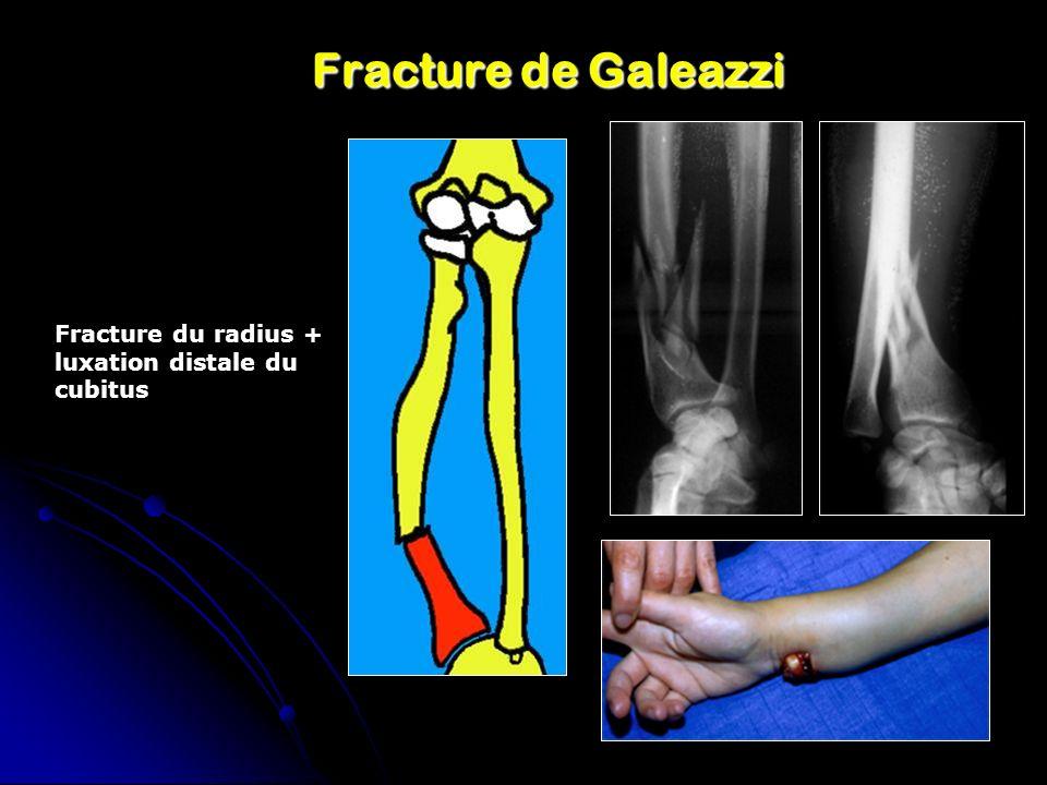 Fracture de Galeazzi Fracture du radius + luxation distale du cubitus