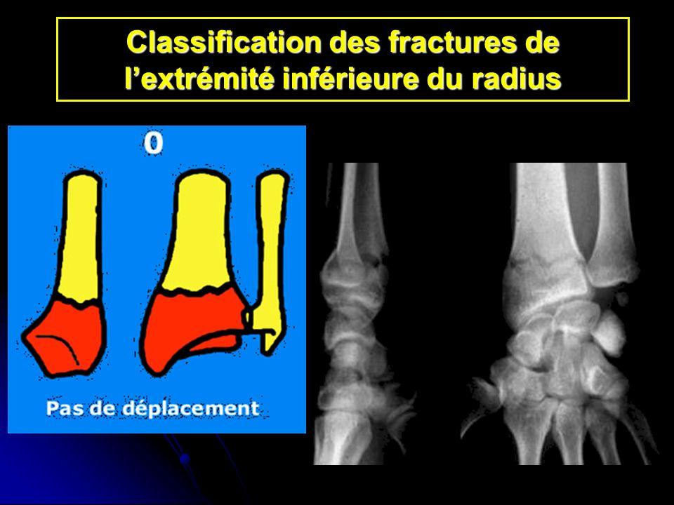 Classification des fractures de lextrémité inférieure du radius