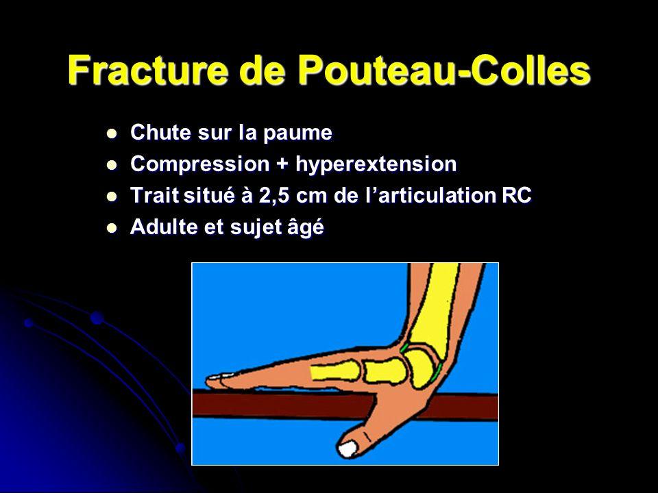 Fracture de Pouteau-Colles Chute sur la paume Chute sur la paume Compression + hyperextension Compression + hyperextension Trait situé à 2,5 cm de larticulation RC Trait situé à 2,5 cm de larticulation RC Adulte et sujet âgé Adulte et sujet âgé