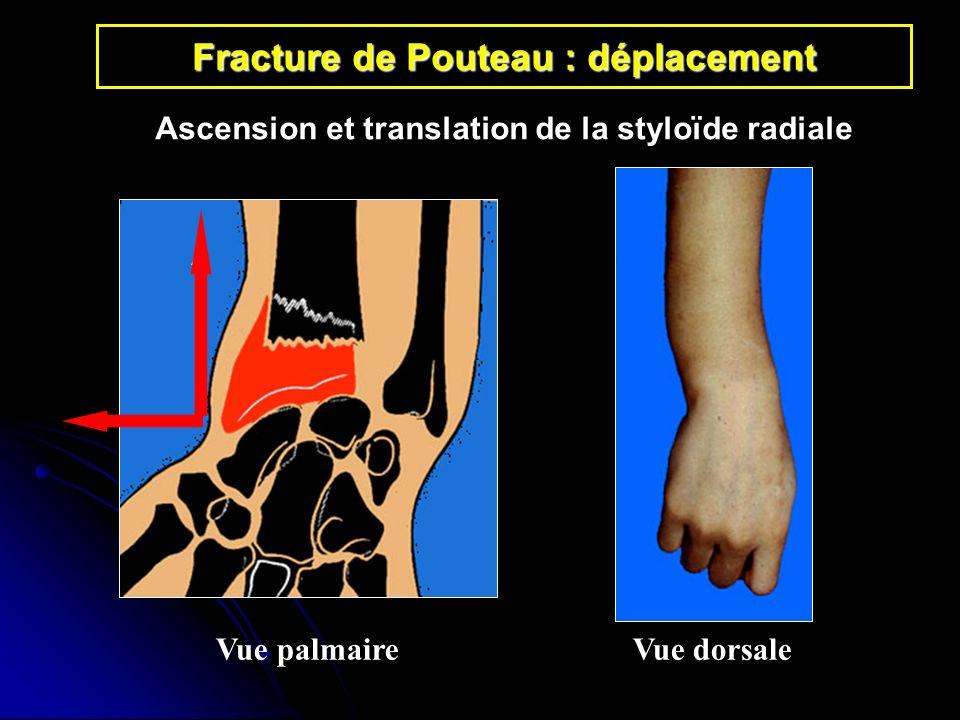 Fracture de Pouteau : déplacement Vue palmaireVue dorsale Ascension et translation de la styloïde radiale