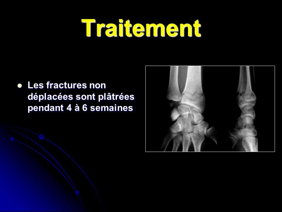 Traitement Les fractures non déplacées sont plâtrées pendant 4 à 6 semaines Les fractures non déplacées sont plâtrées pendant 4 à 6 semaines