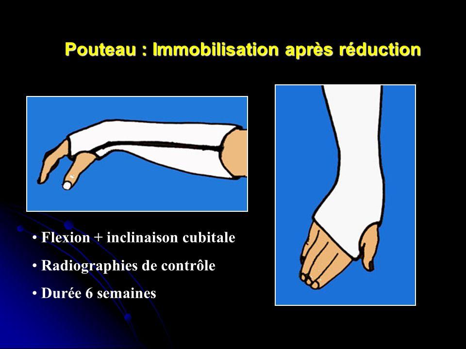 Pouteau : Immobilisation après réduction Flexion + inclinaison cubitale Radiographies de contrôle Durée 6 semaines