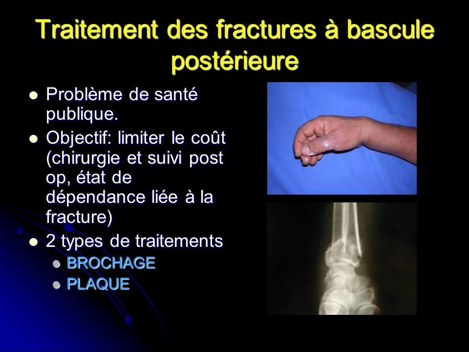 Traitement des fractures à bascule postérieure Problème de santé publique.