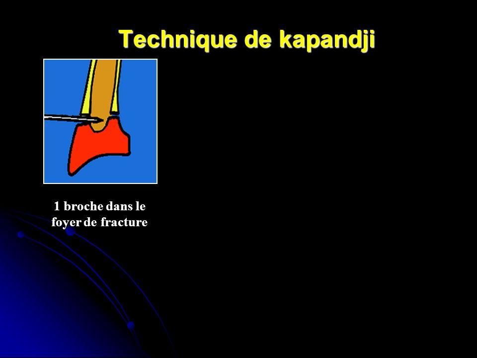 Technique de kapandji 1 broche dans le foyer de fracture