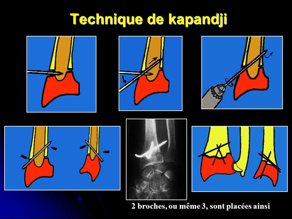 Technique de kapandji 2 broches, ou même 3, sont placées ainsi