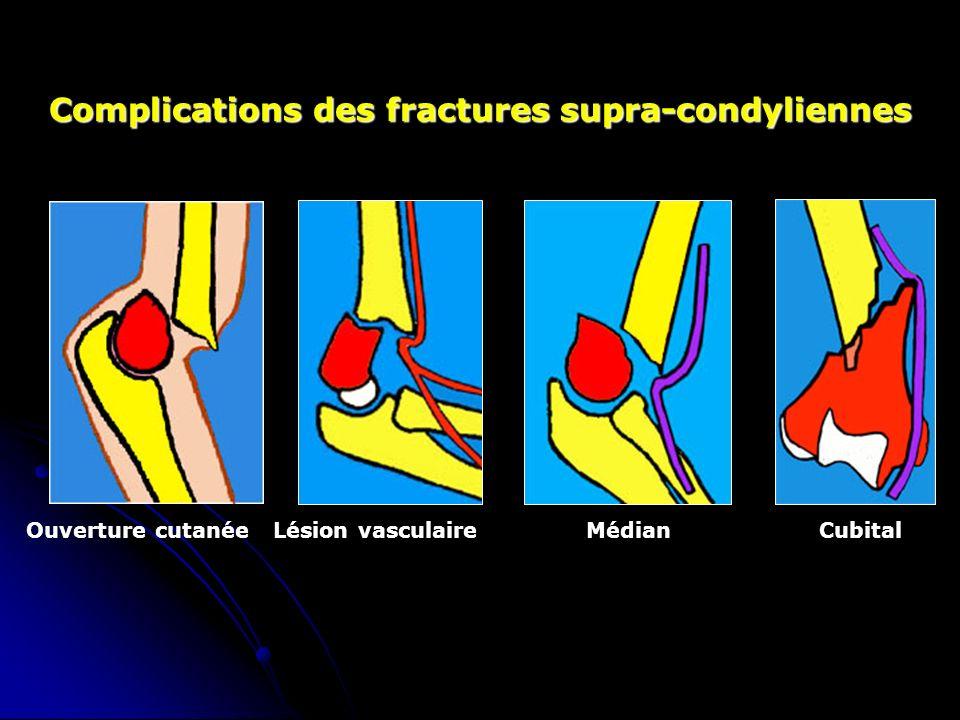 Complications des fractures supra-condyliennes Ouverture cutanée Lésion vasculaireMédian Cubital
