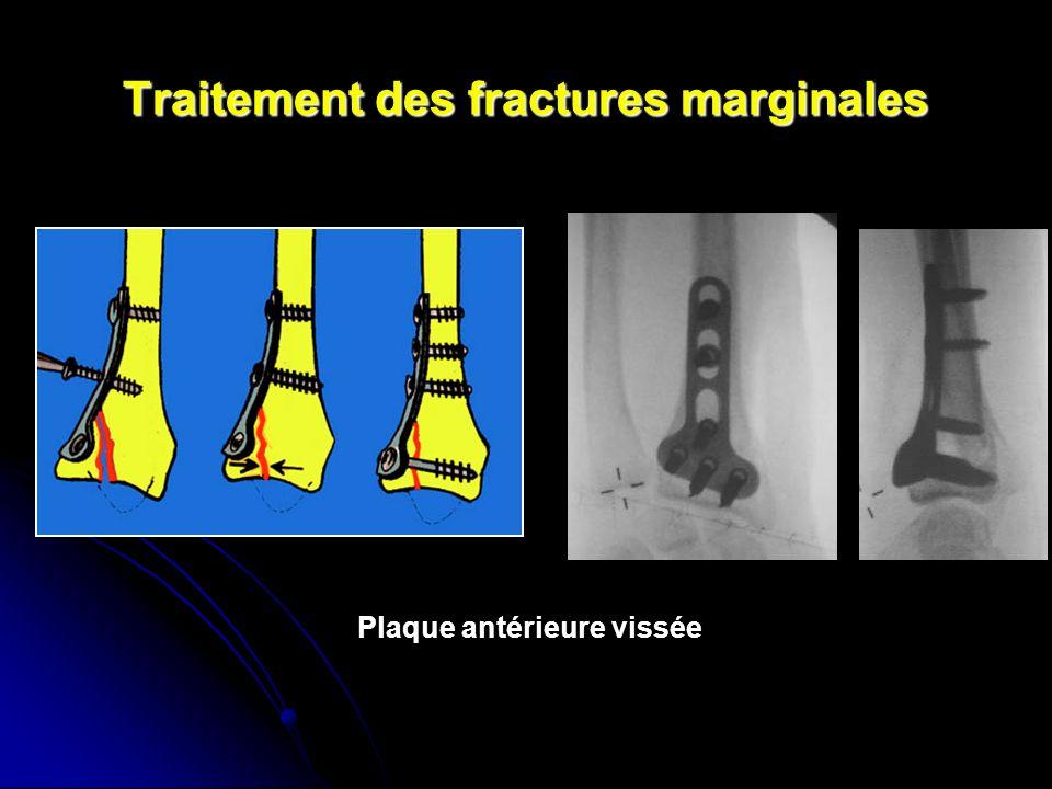 Traitement des fractures marginales Plaque antérieure vissée