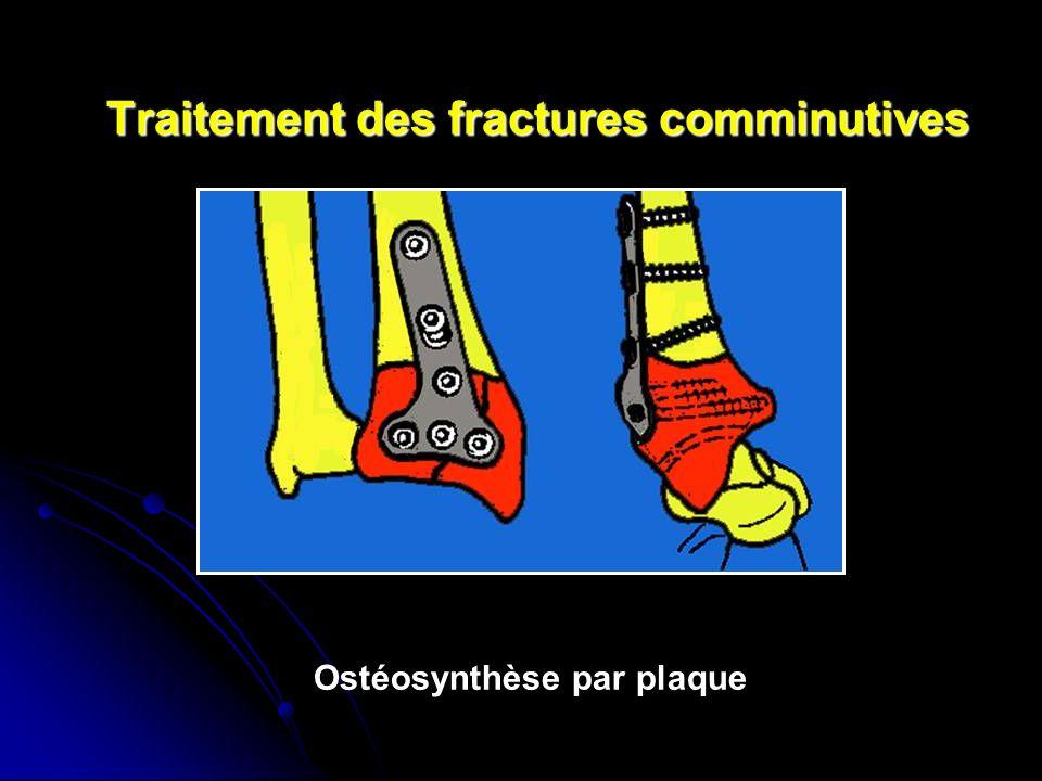 Traitement des fractures comminutives Ostéosynthèse par plaque