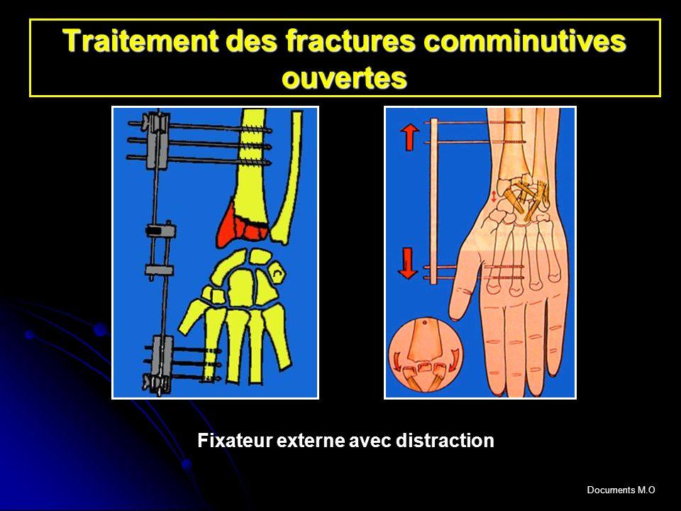 Traitement des fractures comminutives ouvertes Fixateur externe avec distraction Documents M.O