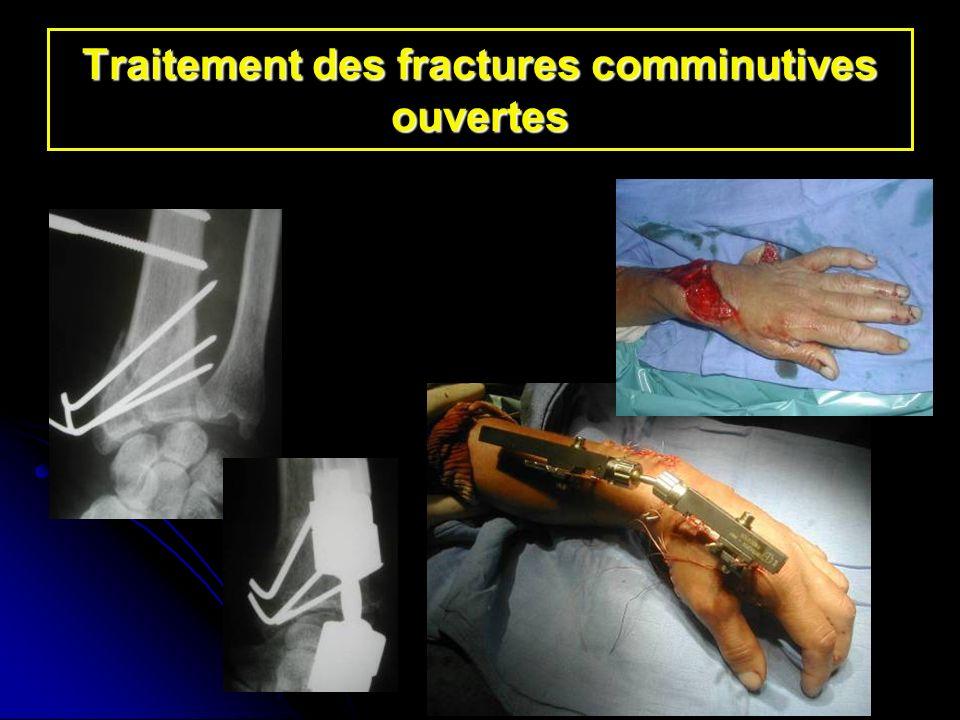 Traitement des fractures comminutives ouvertes