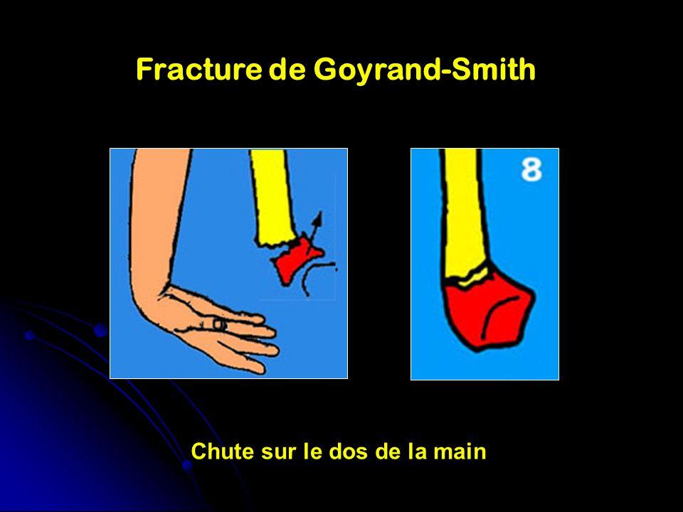 Fracture de Goyrand-Smith Chute sur le dos de la main